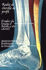 Pratique sportive et blessures des tendons