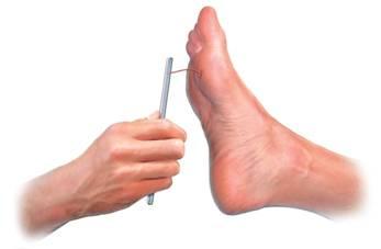 Le pied du diabétique