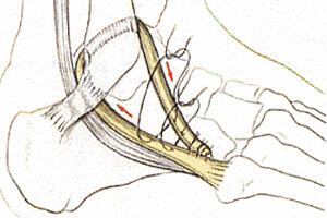 Ligamentoplastie de Castaing