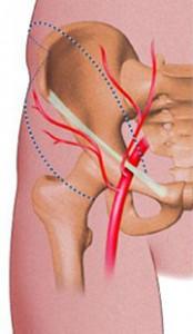 Endofibrose iliaque