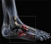 Les examens d'imagerie médicale en médecine du sport