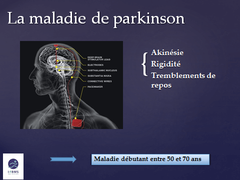 Parkinson : maladie débutant entre 50 et 70 ans
