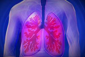 BPCO, une maladie respiratoire chronique
