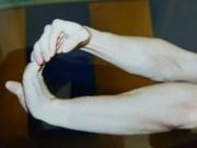 Canal carpien : exercices de prévention