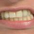 prise-dent