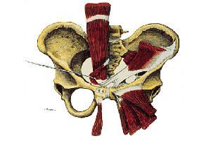 Pubalgie : chirurgie