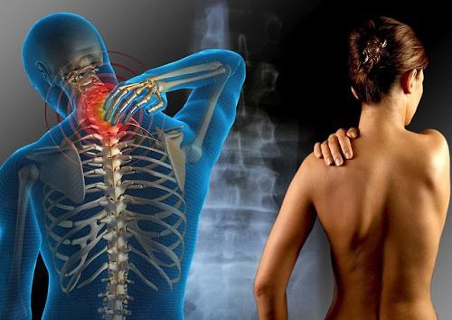 """Résultat de recherche d'images pour """"Fibromyalgie"""""""