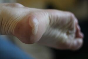 Phlyctènes aux pieds, ampoules, traitement et prévention