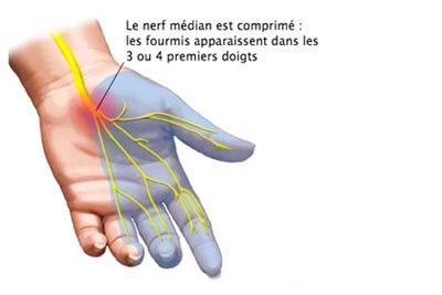 Le nerf médian (canal carpien)
