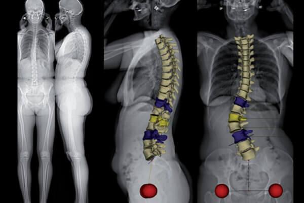 EOS : radiographie du dos