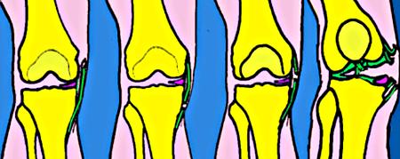 Les entorses du genou