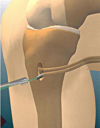 Ligaments croisé antérieur et croisé postérieur (LCA LCP) : les ruptures