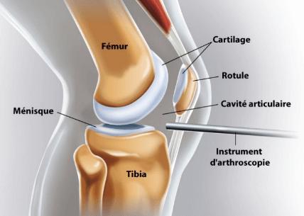 Arthroscopie : endoscope