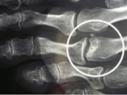 Freiberg : douleur au niveau de la tête des 2° et 3° métatarsiens