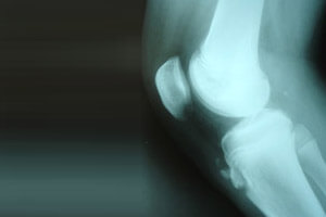 Radiographie genou : osgood-schlatter