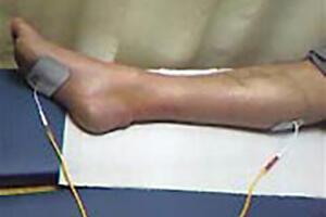 Rééducation après une rupture du tendon d'Achille