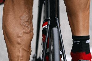 Varices et sport : facteurs de risque, complications et ...