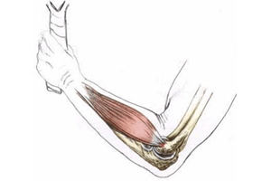 Tennis elbow : coude douloureux