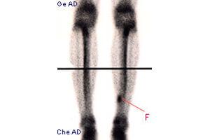 Imagerie médicale : les fractures de fatigue