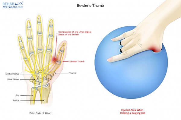 Bowling : Bowler's Thumb - source : Rehab my patient.com