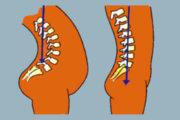 Douleur à la colonne vertébrale chez l'enfant