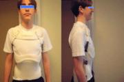 Epiphysite de Scheuermann : traitement par corset