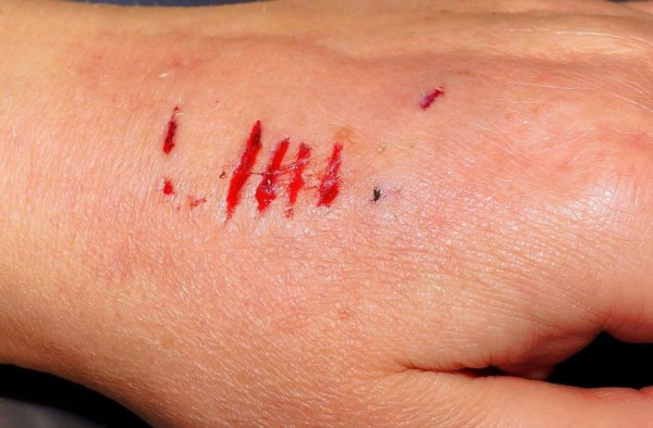 Blessure, plaie : comment la désinfecter ?