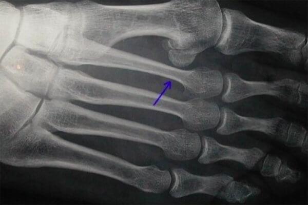 Fracture de fatigue au pied