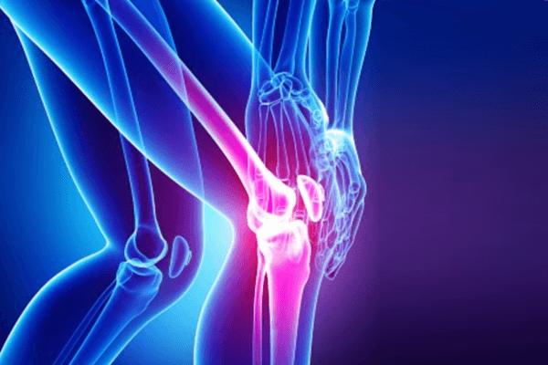 Prévention de la rupture du ligament croisé du genou